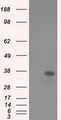 HEK293T cells were transfected with the pCMV6-ENTRY control (Left lane) or pCMV6-ENTRY AKR1A1 (Right lane) cDNA for 48 hrs and lysed. Equivalent amounts of cell lysates (5 ug per lane) were separated by SDS-PAGE and immunoblotted with anti-AKR1A1.