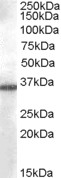 AKR1B10 Antibody - Antibody (0.03 ug/ml) staining of A549 cell lysate (35 ug protein in RIPA buffer). Primary incubation was 1 hour. Detected by chemiluminescence.