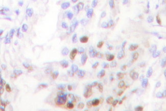 IHC of Akt (A444) pAb in paraffin-embedded human lung carcinoma tissue.