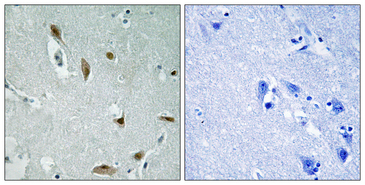 AKT1 + AKT3 Antibody - Immunohistochemistry analysis of paraffin-embedded human brain, using AKT1/3 (Phospho-Tyr437/434) Antibody. The picture on the right is blocked with the phospho peptide.