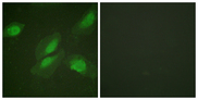 Immunofluorescence analysis of HeLa cells, using Akt Antibody. The picture on the right is blocked with the synthesized peptide.