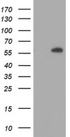 HEK293T cells were transfected with the pCMV6-ENTRY control (Left lane) or pCMV6-ENTRY AKT1 (Right lane) cDNA for 48 hrs and lysed. Equivalent amounts of cell lysates (5 ug per lane) were separated by SDS-PAGE and immunoblotted with anti-AKT1.