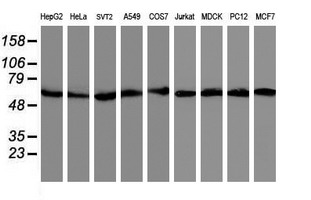 Western blot of extracts (35 ug) from 9 different cell lines by using anti-AKT1 monoclonal antibody.