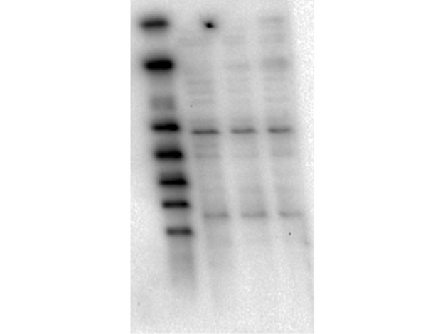 AKT1 Antibody - Western Blot of Mouse Anti-AKT1 antibody. Lane 1: LnCap lysate Lane 2: Jurkat lysate. Lane 3: MDA-MB 468 lysate. Load: 5 µg per lane. Primary antibody: AKT1 unconjugated antibody at 1:1000 for overnight at 4°C. Secondary antibody: Mouse secondary antibody at 1:20,000 for 45 min at RT. Block: 5% BLOTTO overnight at 4°C. Predicted/Observed size: 56 kDa for AKT1.