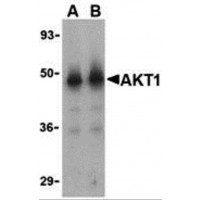Western blot analysis of Akt1 in human liver cell lysate with Akt1 antibody at (A) 1 and (B) 2 µg/mL.
