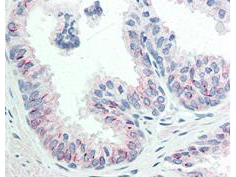 AKT1 Antibody - Immunohistochemistry of Mouse anti-AKT pS473 antibody. Tissue: human prostate tissue. Fixation: formalin fixed paraffin embedded. Antigen retrieval: not required. Primary antibody: AKT pS473 antibody at 20 µg/mL for 1 h at RT. Secondary antibody: Dako's Techmate streptavidin-biotin reagents at 1:10,000 for 45 min at RT. Localization: AKT pS473 is nuclear and occasionally cytoplasmic. Staining: AKT pS473 as precipitated red signal with hematoxylin purple nuclear counterstain.