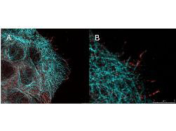 AKT1 Antibody - High resolution STED immunofluorescence nanoscopy of Mouse anti-AKT pS473 antibody. Tissue: A431 cells. The merge images (A) and at high magnification (B) show phosphorylated AKT colocalized with the distal microtubules. Fixation: 4% paraformaldehyde for 5 min and after washes blocked with 10% NGS/0.2% Triton X-100 for 30 min. Antigen retrieval: serum deprivation for 12 h. Primary antibody: AKT pS473 antibody at 10 µg/mL and a-tubulin (cyan) at 1.4 µg/mL for 1 h at RT. Secondary antibody: Atto 647N anti-Mouse IgG (ATTO TEC GmbH), and DyLight 488 anti-Rabbit IgG were used at 1.0 µg/mL for 1h at RT for indirect detection. Localization: AKT pS473 is in the cytoplasm and also organized at the periphery of the cell. Staining: AKT pS473 as red signal with bis-benzimide (blue) nuclear counterstain.