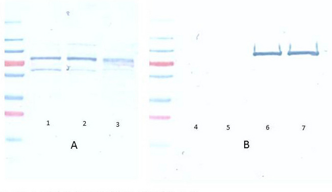 AKT1 Antibody - Western Blot of Mouse Anti-Akt pS473 antibody. A Lane 1) PDGF stimulated NIH 3T3 cells 10 ? Lane 2) NIH 3T3 cells 10 ? Lane 3) Hela whole cell lysate 10 ? (weak signal) B Lane 4) GST negative control protein 100 ng Lane 5) GST negative control protein 25 ng Lane 6) AKT 1 recombinant protein 100 ng Lane 7) AKT 1 recombinant protein 25 ng Block: 5% BSA overnight at 4?. Primary antibody: Monoclonal anti AKT antibody, used at 1:1000 for overnight at 4?. Secondary antibody: HRP Conjugated goat anti mouse lot 20121 1:25K for 45 min at RT. Detection : TMBM-100 for 20 minutes, rinsed with deionized water, dried and scanned on conventional flatbed scanner