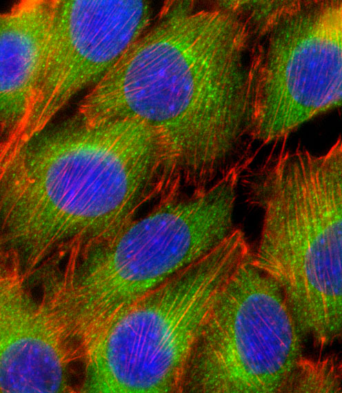 AKT2 Antibody - Fluorescent confocal image of C2C12 cell stained with AKT2 Antibody. C2C12 cells were fixed with 4% PFA (20 min), permeabilized with Triton X-100 (0.1%, 10 min), then incubated with AKT2 primary antibody (1:25, 1 h at 37°C). For secondary antibody, Alexa Fluor 488 conjugated donkey anti-rabbit antibody (green) was used (1:400, 50 min at 37°C). Cytoplasmic actin was counterstained with Alexa Fluor 555 (red) conjugated Phalloidin (7units/ml, 1 h at 37°C). Nuclei were counterstained with DAPI (blue) (10 ug/ml, 10 min). AKT2 immunoreactivity is localized to Cytoplasm significantly.