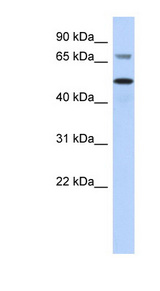 AKT2 antibody Western blot of MCF7 cell lysate. This image was taken for the unconjugated form of this product. Other forms have not been tested.