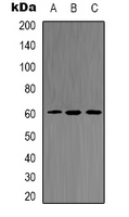 Western blot analysis of AKT2 (pS474) expression in HeLa (A); mouse brain (B); PC12 UV-treated (C) whole cell lysates.