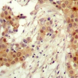 Immunohistochemical analysis of AKT2 (pS474) staining in human breast cancer formalin fixed paraffin embedded tissue section. The section was pre-treated using heat mediated antigen retrieval with sodium citrate buffer (pH 6.0). The section was then incubated with the antibody at room temperature and detected using an HRP polymer system. DAB was used as the chromogen. The section was then counterstained with hematoxylin and mounted with DPX.