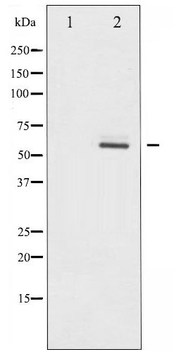 Western blot of Akt2 phosphorylation expression in TNF- alpha treated A2780 whole cell lysates,The lane on the left is treated with the antigen-specific peptide.