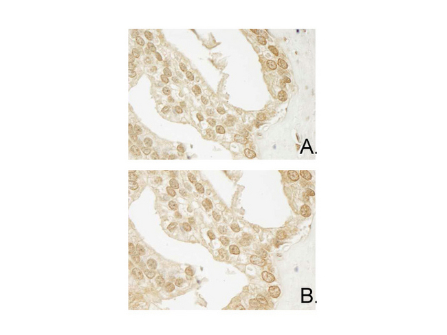 AKT3 Antibody - Immunohistochemistry of Mouse Anti-AKT3 antibody. Tissue: human prostate carcinoma. A) AKT-3 antibody produced using CELLine, B) AKT-3 antibody produced using roller bottle. Fixation: formalin fixed paraffin embedded. Antigen retrieval: not required. Primary antibody: AKT-3 unconjugated antibody at 10 µg/mL for 1 h at RT. Secondary antibody: Peroxidase mouse secondary antibody at 1:10,000 for 1 h at RT. Localization: AKT3 is nuclear and occasionally cytoplasmic. Staining: AKT3 as precipitated brown signal with hematoxylin purple nuclear counterstain.