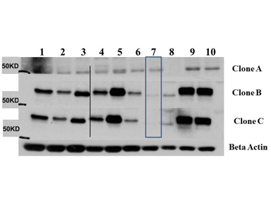 AKT3 Antibody - Western Blot of Mouse Anti-AKT3 antibody. Lane 1: C2C12. Lane 2: MEF#1. Lane 3: MEF#2. Lane 4: A549. Lane 5: Calu-1. Lane 6: PC3. Lane 7: HepG2. Lane 8: Jurkat. Lane 9: SKOV3. Lane 10: 293T. Load: 35 µg per lane. Primary antibody: AKT-3 unconjugated antibody at 1:1000 for overnight at 4°C. Secondary antibody: Anti mouse secondary antibody at 1:20,000 for 1 h at RT. Block: 5% BLOTTO overnight at 4°C. Predicted/Observed size: 56 kDa for AKT3.