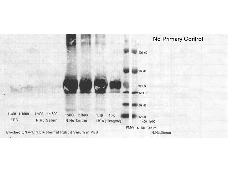 Secondary Antibodies - Western Blot. secondary antibodies detect rabbit primary antibodies in a variety of platforms. Shown here is a serial 1:1 dilution of control rabbit IgG protein ( 250 ng starting total load) co incubated with LS-C60865 and 1:20K in MB-070. Blot was dried and imaged (A) on Bio-Rad Versa Doc (30 sec, DyLight649), (B) LiCor Odyssey Reader (700 nm), (C ) Rewetted incubated with Femtomax 110 reimaged using BioVersaDoc (for 60 sec), (D) Incubated with TMB substrate TMBM for 5 minutes and scanned, and (E) Rewetted for Chemiluminescence and imaged for 90 sec on the BioRad VersaDoc Imager,. This image was taken for the unconjugated form of this product. Other forms have not been tested.