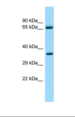 Western blot of Human ACHN. ALDH16A1 antibody dilution 1.0 ug/ml.  This image was taken for the unconjugated form of this product. Other forms have not been tested.