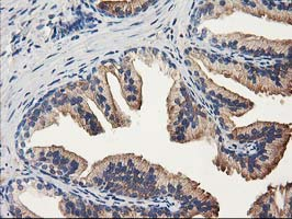 IHC of paraffin-embedded Human prostate tissue using anti-ALDH1A3 mouse monoclonal antibody.