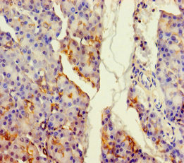 ALDH1L2 Antibody - Immunohistochemistry of paraffin-embedded human pancreatic tissue using ALDH1L2 Antibody at dilution of 1:100