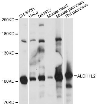 ALDH1L2 Antibody - Western blot analysis of extracts of various cell lines, using ALDH1L2 antibody at 1:1000 dilution. The secondary antibody used was an HRP Goat Anti-Rabbit IgG (H+L) at 1:10000 dilution. Lysates were loaded 25ug per lane and 3% nonfat dry milk in TBST was used for blocking. An ECL Kit was used for detection and the exposure time was 1s.