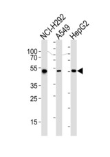Western blot of lysates from NCI-H292, A549, HepG2 cell line (from left to right), using ALDH2 Antibody. Antibody was diluted at 1:1000 at each lane. A goat anti-mouse IgG H&L (HRP) at 1:3000 dilution was used as the secondary antibody. Lysates at 35ug per lane.