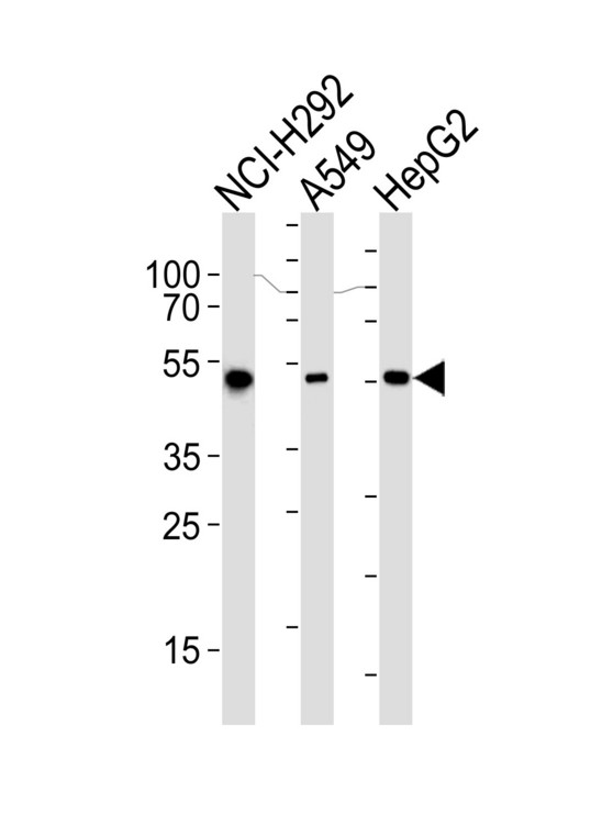 ALDH2 Antibody - Western blot of lysates from NCI-H292, A549, HepG2 cell line (from left to right), using ALDH2 Antibody. Antibody was diluted at 1:1000 at each lane. A goat anti-mouse IgG H&L (HRP) at 1:3000 dilution was used as the secondary antibody. Lysates at 35ug per lane.