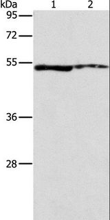 ALDH3A1 Antibody - Western blot analysis of A549 and mouse eye tissue, using ALDH3A1 Polyclonal Antibody at dilution of 1:750.