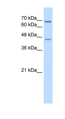 ALDH3A2 antibody ARP44274_P050-NP_000373-ALDH3A2(aldehyde dehydrogenase 3 family, member A2) Antibody Western blot of Jurkat lysate.  This image was taken for the unconjugated form of this product. Other forms have not been tested.
