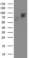 HEK293T cells were transfected with the pCMV6-ENTRY control (Left lane) or pCMV6-ENTRY ALDH3A2 (Right lane) cDNA for 48 hrs and lysed. Equivalent amounts of cell lysates (5 ug per lane) were separated by SDS-PAGE and immunoblotted with anti-ALDH3A2.