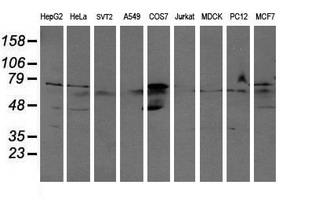 Western blot of extracts (35 ug) from 9 different cell lines by using anti-ALDH3A2 monoclonal antibody (HepG2: human; HeLa: human; SVT2: mouse; A549: human; COS7: monkey; Jurkat: human; MDCK: canine; PC12: rat; MCF7: human).