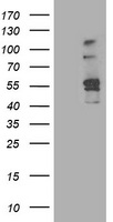 ALDH3A2 Antibody - HEK293T cells were transfected with the pCMV6-ENTRY control (Left lane) or pCMV6-ENTRY ALDH3A2 (Right lane) cDNA for 48 hrs and lysed. Equivalent amounts of cell lysates (5 ug per lane) were separated by SDS-PAGE and immunoblotted with anti-ALDH3A2.