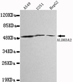 ALDH3A2 Antibody - Western blot detection of ALDH3A2 in A549,U251&HepG2 cell lysates using ALDH3A2 antibody (1:1000 diluted). Predicted band size:55KDa Observed band size:55KDa.