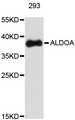 Western blot analysis of extracts of 293 cells, using ALDOA antibody. The secondary antibody used was an HRP Goat Anti-Rabbit IgG (H+L) at 1:10000 dilution. Lysates were loaded 25ug per lane and 3% nonfat dry milk in TBST was used for blocking.