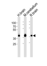 Western blot of lysates from human brain, mouse cerebellum and rat brain tissue lysate (from left to right), using ALDOC Antibody. Antibody was diluted at 1:1000 at each lane. A goat anti-rabbit IgG H&L (HRP) at 1:10000 dilution was used as the secondary antibody. Lysates at 35ug per lane.