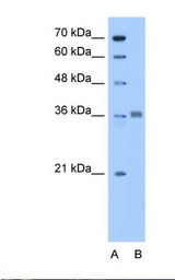 ALDOC / Aldolase C Antibody - Lane A: Marker. Lane B: HepG2 cell lysate. Antibody concentration: 0.5 ug/ml. Gel concentration: 12%.  This image was taken for the unconjugated form of this product. Other forms have not been tested.