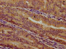 ALG10 / KCR1 Antibody - Immunohistochemistry Dilution at 1:300 and staining in paraffin-embedded human endometrial cancer performed on a Leica BondTM system. After dewaxing and hydration, antigen retrieval was mediated by high pressure in a citrate buffer (pH 6.0). Section was blocked with 10% normal Goat serum 30min at RT. Then primary antibody (1% BSA) was incubated at 4°C overnight. The primary is detected by a biotinylated Secondary antibody and visualized using an HRP conjugated SP system.