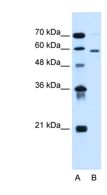 ALG11 antibody LS-C40481 Western blot of HepG2 cell lysate.  This image was taken for the unconjugated form of this product. Other forms have not been tested.