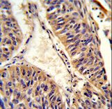 Formalin-fixed and paraffin-embedded human lung carcinoma reacted with ALG14 Antibody , which was peroxidase-conjugated to the secondary antibody, followed by DAB staining. This data demonstrates the use of this antibody for immunohistochemistry; clinical relevance has not been evaluated.