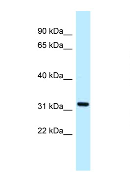ALG5 antibody LS-C145878 Western blot of 1 Cell lysate. Antibody concentration 1 ug/ml.  This image was taken for the unconjugated form of this product. Other forms have not been tested.
