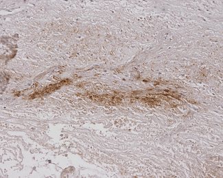 Alginate Antibody - Immunohistochemistry analysis using Mouse Anti-Alginate Monoclonal Antibody, Clone 4B10-1C5. Tissue: Burned Skin. Species: Human. Primary Antibody: Mouse Anti-Alginate Monoclonal Antibody  at 1:200.