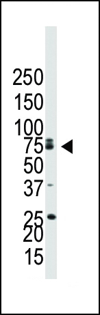 Western blot of anti-BMPR1B antibody in NCI-H460 cell lysate. BMPR1B (arrow) was detected using purified antibody. Secondary HRP-anti-rabbit was used for signal visualization with chemiluminescence.