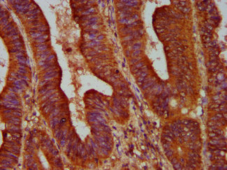 Immunohistochemistry Dilution at 1:500 and staining in paraffin-embedded human colon cancer performed on a Leica BondTM system. After dewaxing and hydration, antigen retrieval was mediated by high pressure in a citrate buffer (pH 6.0). Section was blocked with 10% normal Goat serum 30min at RT. Then primary antibody (1% BSA) was incubated at 4°C overnight. The primary is detected by a biotinylated Secondary antibody and visualized using an HRP conjugated SP system.