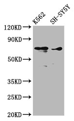 Western Blot Positive WB detected in: K562 whole cell lysate, SH-SY5Y whole cell lysate All Lanes: ALOX12 antibody at 3.53µg/ml Secondary Goat polyclonal to rabbit IgG at 1/50000 dilution Predicted band size: 76 KDa Observed band size: 76 KDa