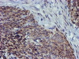 IHC of paraffin-embedded Adenocarcinoma of Human breast tissue using anti-ALOX15 mouse monoclonal antibody.