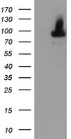 ALOX15 / 15-Lipoxygenase Antibody - HEK293T cells were transfected with the pCMV6-ENTRY control (Left lane) or pCMV6-ENTRY ALOX15 (Right lane) cDNA for 48 hrs and lysed. Equivalent amounts of cell lysates (5 ug per lane) were separated by SDS-PAGE and immunoblotted with anti-ALOX15.