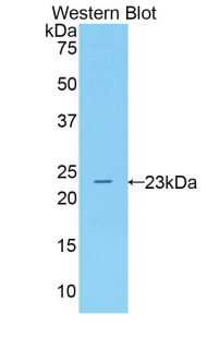 ALOX5 / 5-LOX Antibody - Western blot of recombinant ALOX5 / 5-Lipoxygenase.  This image was taken for the unconjugated form of this product. Other forms have not been tested.