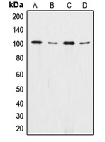 Alpha 1+2 Catenin Antibody - Western blot analysis of Catenin alpha 1/2 expression in MCF7 (A); A431 (B); SHSY5Y (C); PC12 (D) whole cell lysates.