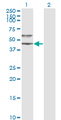 Western blot of SERPINA3 expression in transfected 293T cell line by SERPINA3 monoclonal antibody (M01), clone 1E6.