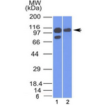 Alpha Catenin Antibody - Western blot testing of human 1) A431 and 2) MCF7 cell lysate with Alpha Catenin antibody (clone 1G5). Expected molecular weight ~102 kDa.