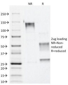 Alpha Catenin Antibody - SDS-PAGE Analysis of Purified, BSA-Free Alpha Catenin Antibody (clone 1G5). Confirmation of Integrity and Purity of the Antibody.